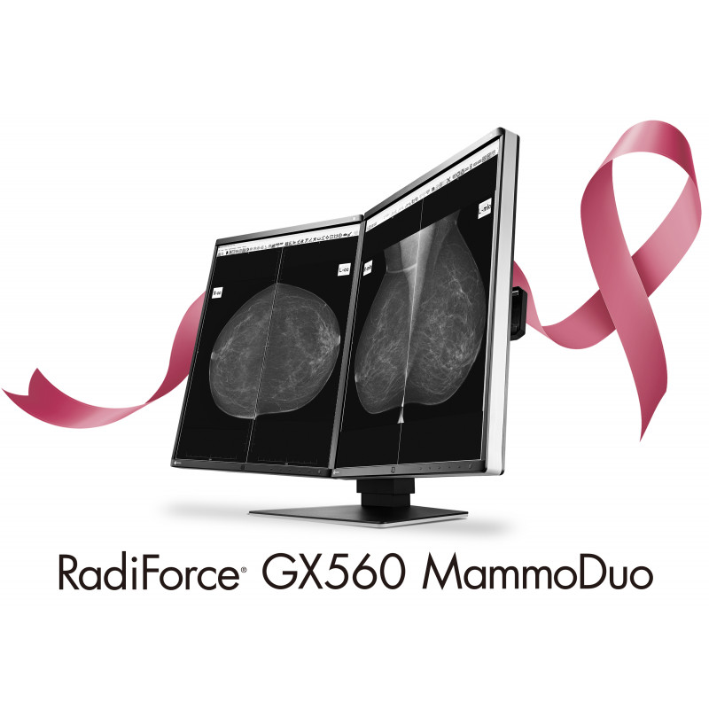 Ecran Eizo RadiForce GX560-MD