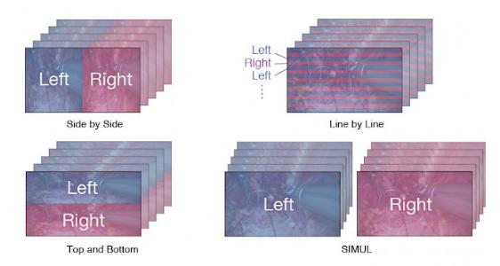compatibilité différents signaux 3D écran bloc opératoire eizox curator ex3220