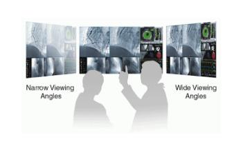 grand angle de vision écran bloc opératoire eizo ls580