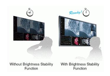 stabilisation rapide de l'affichage écran bloc opératoire eizo ls580