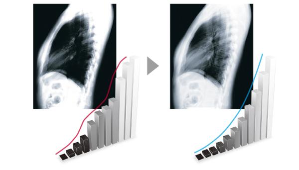 Maintien de la précision écran médical EIZO MX242W