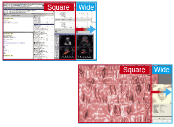 plus d'information avec un format 16:10 écran médical EIZO Radiforce MX242