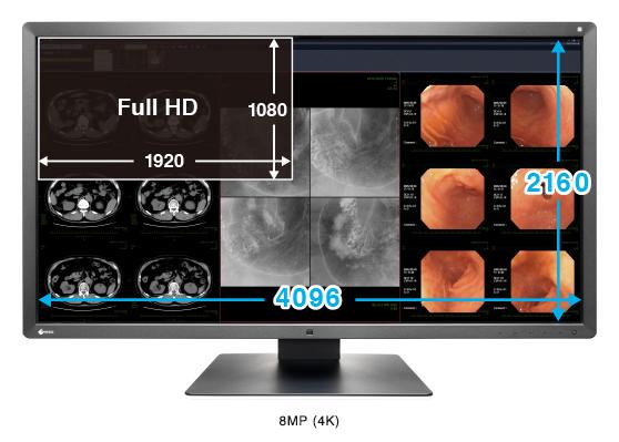 haute résolution 8MP écran médical EIZO Radiforce MX315W