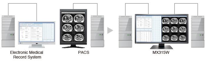 amélioration de la lisibilité des images écran médical EIZO Radiforce MX315W