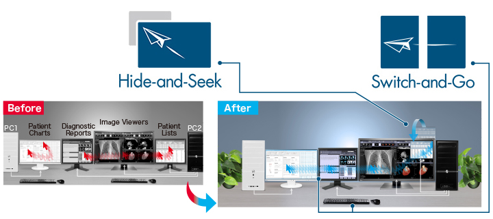 fonction amélioration flux d'informations écran médical EIZO MX315W