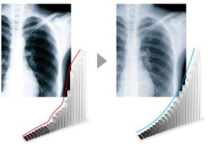 maintien de la précision écran médical EIZO Radiforce RX250