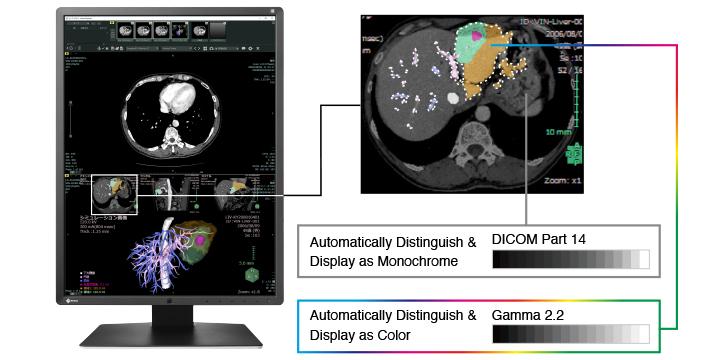 Affichage monochrome et couleurs radiologie écran médical Radiforce EIZO RX250