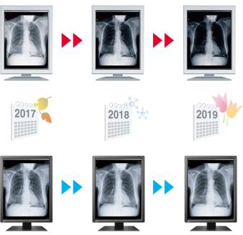 luminosité stable dans le temps écran médical EIZO Radiforce RX250