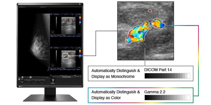 affichage couleurs et monochrome écran médical EIZO Radiforce RX560