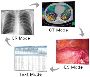 mode idéal pour chaque modalité écran médical EIZO Radiforce RX660