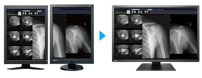 monodalle écran médical EIZO Radiforce RX660