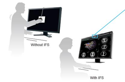 sonde de calibration intégrée écran médical EIZO Radiforce RX660